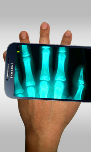 Free Xray Scanner Prank cell phone app